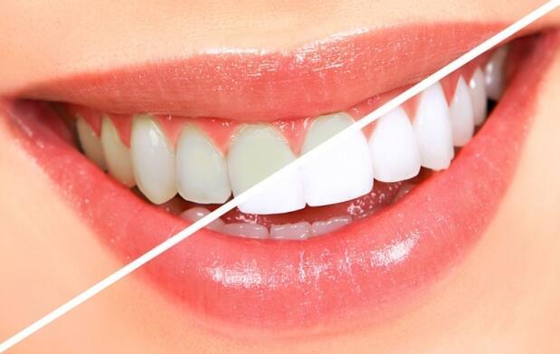 Limpieza + blanqueamiento dental con led