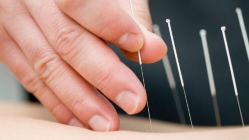 1, 3 o 5 sesiones de acupuntura en el centro