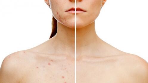 Láser eliminación manchas + tratamiento cosmético