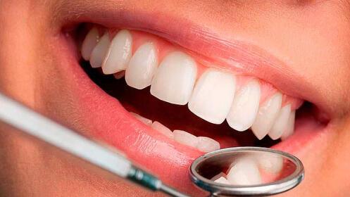 Limpieza dental + fluorización, opción con polvo perlado