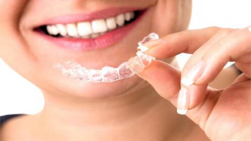 Férula blanda de descarga + limpieza dental