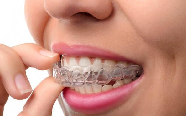 Férula de descarga + limpieza dental