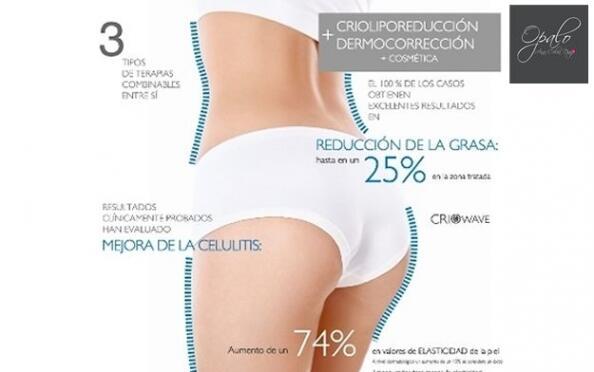 Reduce talla de forma permanente con la criolipólisis
