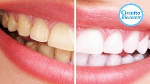 Blanqueamiento LED + limpieza dental en el centro