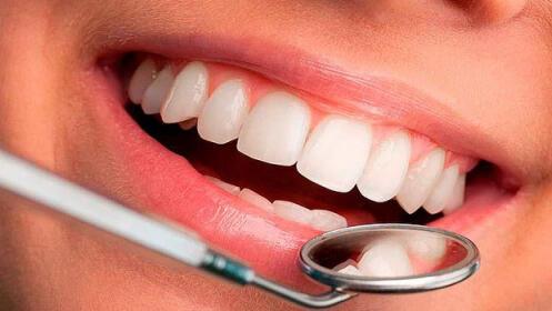 Limpieza dental + fluorización + revisión