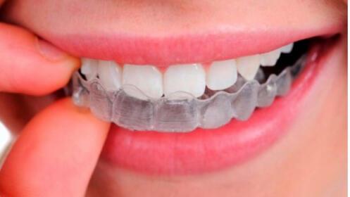 Férula descarga + limpieza dental